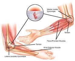 elbow 3