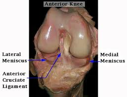 Meniscus – Mechanism of Inury